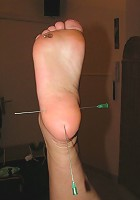 Needles in Feet